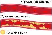 5 советов по снижению холестерина